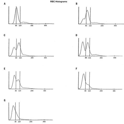 Histograms of iron deficiency anemia after treatment (key